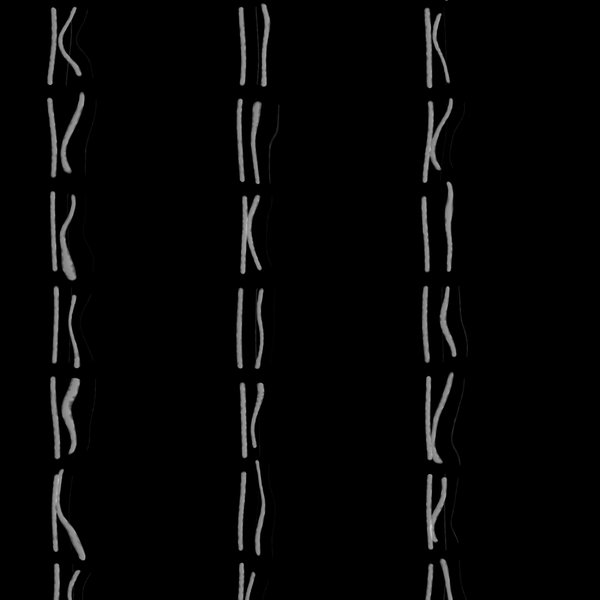 Chromosomes 2: An illustration of chromosomes.
