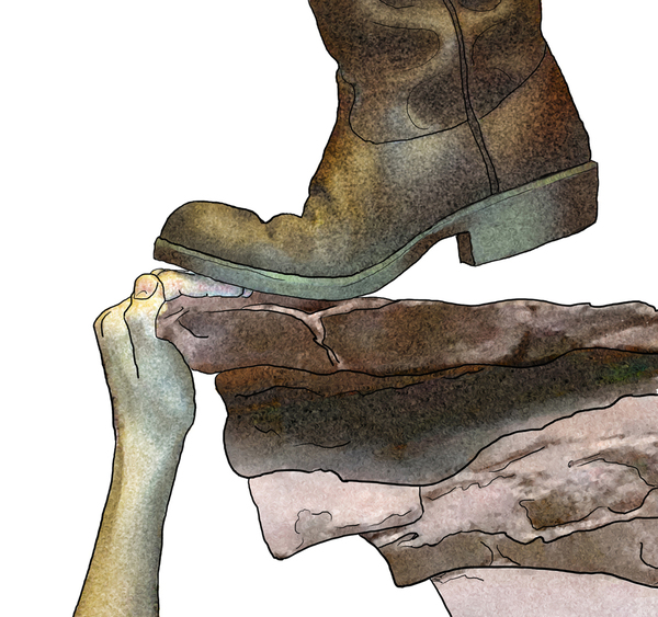 Boot Pinch: A boot crushes the fingers on a cliff